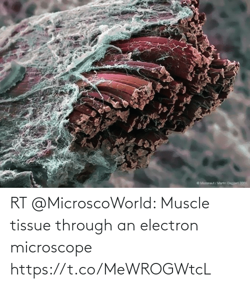 muscle: RT @MicroscoWorld: Muscle tissue through an electron microscope https://t.co/MeWROGWtcL