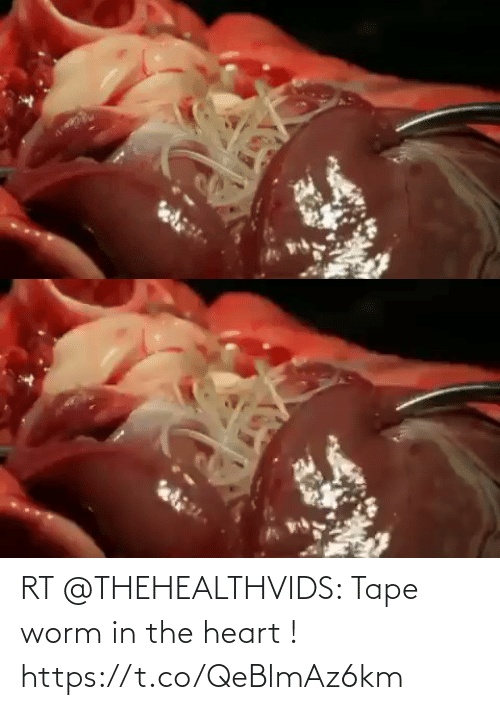 the heart: RT @THEHEALTHVIDS: Tape worm in the heart ! https://t.co/QeBlmAz6km