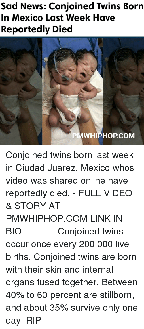 Memes, International, and 🤖: Sad News: Conjoined Twins Born  In Mexico Last Week Have  Reportedly Died  PMWHIPHOP COM Conjoined twins born last week in Ciudad Juarez, Mexico whos video was shared online have reportedly died. - FULL VIDEO & STORY AT PMWHIPHOP.COM LINK IN BIO ______ Conjoined twins occur once every 200,000 live births. Conjoined twins are born with their skin and internal organs fused together. Between 40% to 60 percent are stillborn, and about 35% survive only one day. RIP