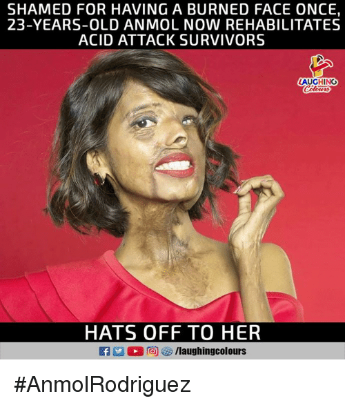 Old, Indianpeoplefacebook, and Her: SHAMED FOR HAVING A BURNED FACE ONCE,  23-YEARS-OLD ANMOL NOW REHABILITATES  ACID ATTACK SURVIVORS  LAUGHING  HATS OFF TO HER  f/laughingcolours #AnmolRodriguez