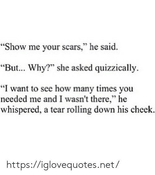"i want to see: ""Show me your scars,"" he said.  95  ""But... Why?"" she asked quizzically.  ""I want to see how many times you  needed me and I wasn't there,"" he  whispered, a tear rolling down his cheek. https://iglovequotes.net/"