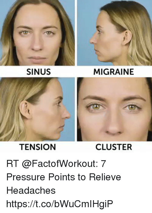SINUS MIGRAINE TENSION CLUSTER RT 7 Pressure Points to ...