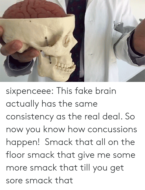 smack: sixpenceee:  This fake brain actually has the same consistency as the real deal. So now you know how concussions happen!  Smack that all on the floor smack that give me some more smack that till you get sore smack that