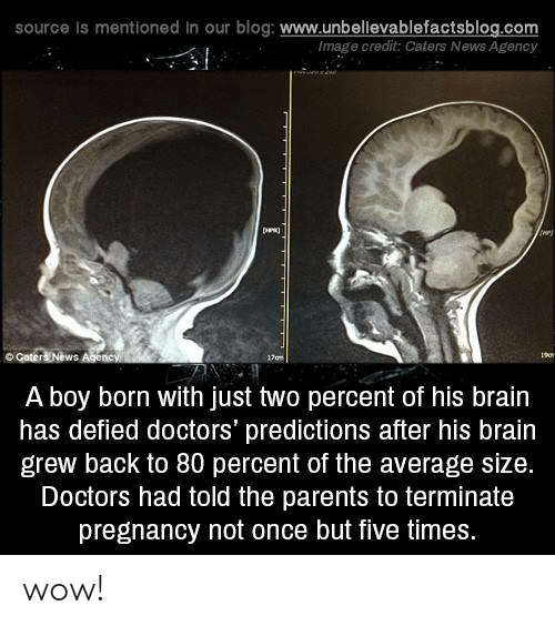 Predictions: source is mentioned in our blog: www.unbellevablefactsblog.com  Image credit: Caters News Agency  ry  o Gater  ews  A boy born with just two percent of his brain  has defied doctors' predictions after his brain  grew back to 80 percent of the average size.  Doctors had told the parents to terminate  pregnancy not once but five times. wow!