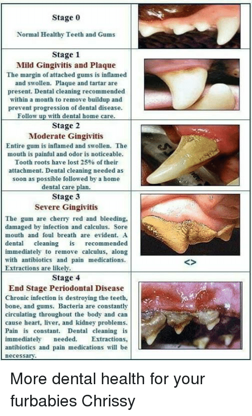 how to clean plaque if you have severe gingivitis