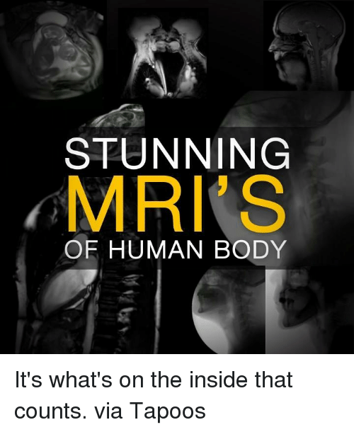 mri: STUNNING  MRI S  OF HUMAN BODY It's what's on the inside that counts.  via Tapoos
