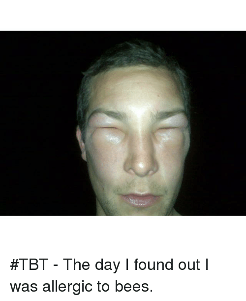 Dank Memes: #TBT - The day I found out I was allergic to bees.