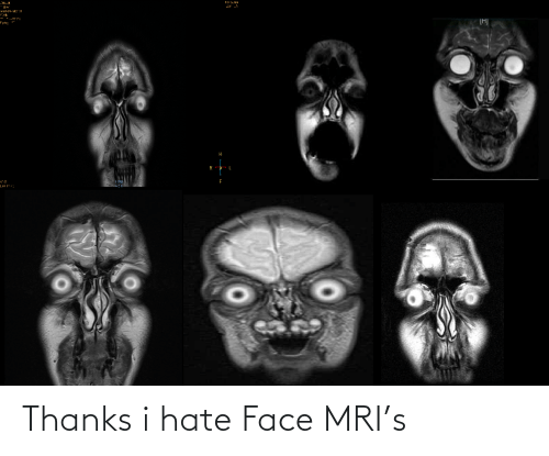 mri: Thanks i hate Face MRI's
