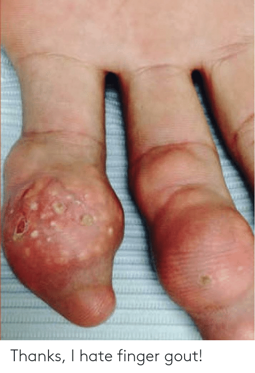 gout: Thanks, I hate finger gout!
