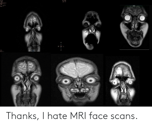mri: Thanks, I hate MRI face scans.