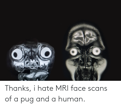 mri: Thanks, i hate MRI face scans of a pug and a human.