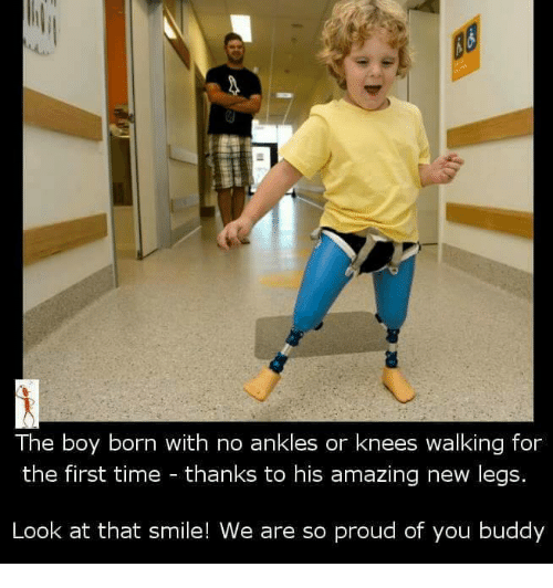 Memes, 🤖, and First: The boy born with no ankles or knees walking for  the first time thanks to his amazing new legs.  Look at that smile! We are so proud of you buddy