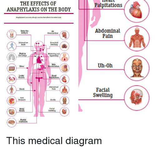 anaphylaxis symptom diagram the effects of anaphylaxis on the body palpitations ...
