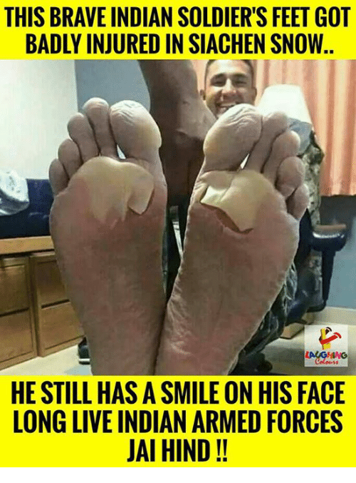 Soldiers, Brave, and Live: THIS BRAVE INDIAN SOLDIER'S FEET GOT  BADLY INJURED IN SIACHEN SNOW.  HE STILL HAS A SMILE ON HIS FACE  LONG LIVE INDIAN ARMED FORCES  JAI HIND!