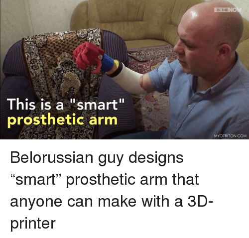 """3d printers: This is a """"smart""""  prosthetic arm  IN THE  MYO TRITON COM Belorussian guy designs """"smart"""" prosthetic arm that anyone can make with a 3D-printer"""
