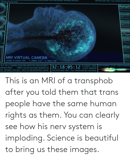 mri: This is an MRI of a transphob after you told them that trans people have the same human rights as them. You can clearly see how his nerv system is imploding. Science is beautiful to bring us these images.