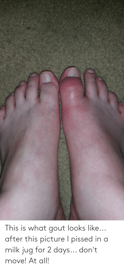 gout: This is what gout looks like... after this picture I pissed in a milk jug for 2 days... don't move! At all!