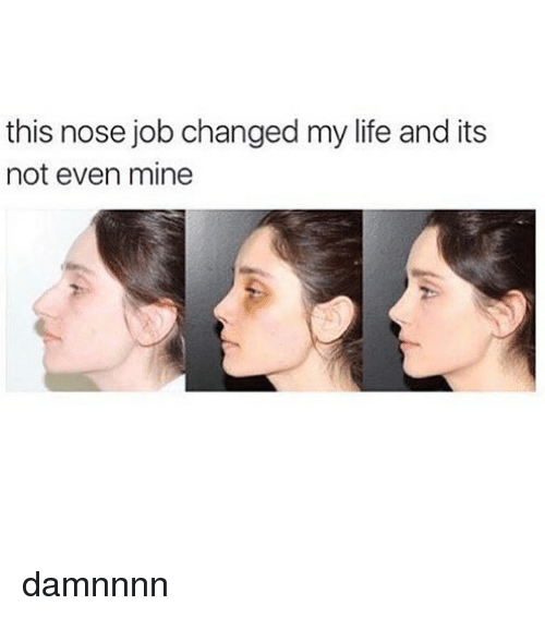 Damnnnn: this nose job changed my life and its  not even mine damnnnn