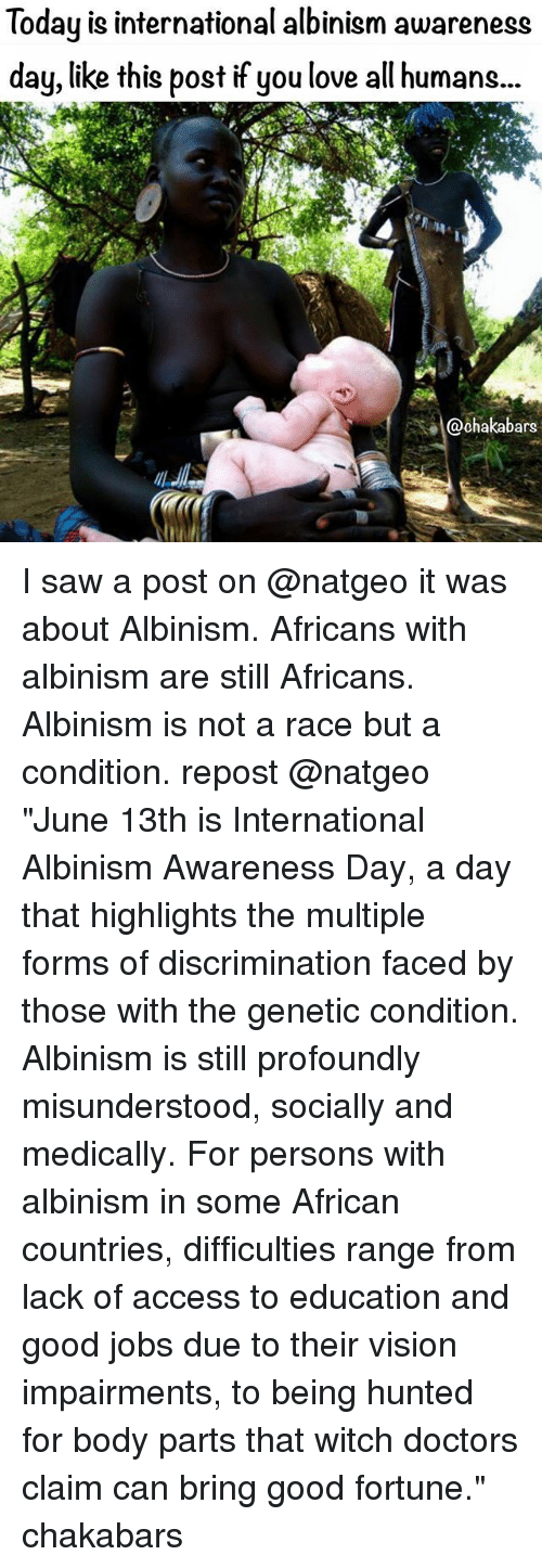 """Love, Memes, and Saw: Today is international albinism awareness  day, like this post if you love all humans...  ars I saw a post on @natgeo it was about Albinism. Africans with albinism are still Africans. Albinism is not a race but a condition. repost @natgeo """"June 13th is International Albinism Awareness Day, a day that highlights the multiple forms of discrimination faced by those with the genetic condition. Albinism is still profoundly misunderstood, socially and medically. For persons with albinism in some African countries, difficulties range from lack of access to education and good jobs due to their vision impairments, to being hunted for body parts that witch doctors claim can bring good fortune."""" chakabars"""