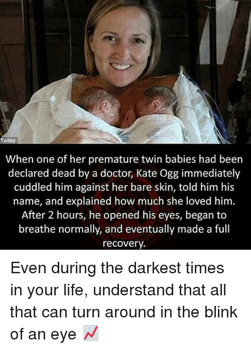 Memes, 🤖, and Skins: Today  When one of her premature twin babies had been  declared dead by a doctor, Kate Ogg immediately  cuddled him against her bare skin, told him his  name, and explained how much she loved him  After 2 hours, he opened his eyes, began to  breathe normally, and eventually made a full  recovery. Even during the darkest times in your life, understand that all that can turn around in the blink of an eye 📈
