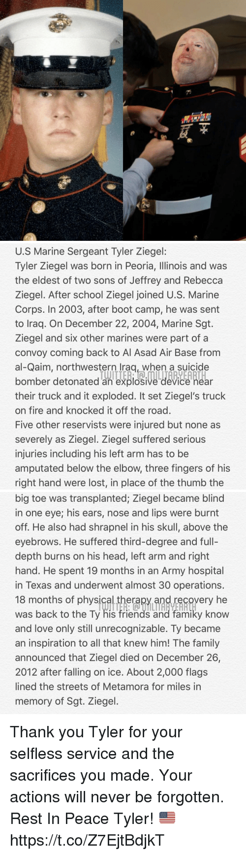 physic: U.S Marine Sergeant Tyler Ziegel:  lyler Ziegel was born in Peoria, llinois and was  the eldest of two sons of Jeffrey and Rebecca  Ziegel. After school Ziegel joined U.S. Marine  Corps. In 2003, after boot camp, he was sent  to Iraq. On December 22, 2004, Marine Sgt.  Ziegel and six other marines were part of a  convoy coming back to Al Asad Air Base from  al-Qaim, northwestern lraq, when a suicide  bomber detonated an explosive device near  their truck and it exploded. It set Ziegel's truck  on fire and knocked it off the road  Five other reservists were injured but none as  severely as Ziegel. Ziegel suffered serious  injuries including his left arm has to be  amputated below the elbow, three fingers of his  right hand were lost, in place of the thumb the  bomber detonated an explosive device Rear   big toe was transplanted; Ziegel became blind  in one eye; his ears, nose and lips were burnt  off. He also had shrapnel in his skull, above the  eyebrows. He suffered third-degree and full-  depth burns on his head, left arm and right  hand. He spent 19 months in an Army hospital  in Texas and underwent almost 30 operations  18 months of physic  was back to the Ty his friends and famiky know  and love only still unrecognizable. Ty became  an inspiration to all that knew him! The family  announced that Ziegel died on December 26,  2012 after falling on ice. About 2,000 flags  lined the streets of Metamora for miles in  memory of Sgt. Ziegel  erapy and recovery he Thank you Tyler for your selfless service and the sacrifices you made. Your actions will never be forgotten. Rest In Peace Tyler! 🇺🇸 https://t.co/Z7EjtBdjkT