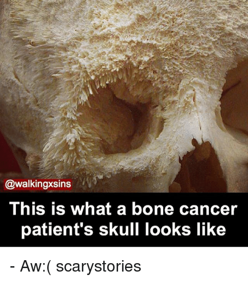 image Homless bone cancer patient get to suck young pussy