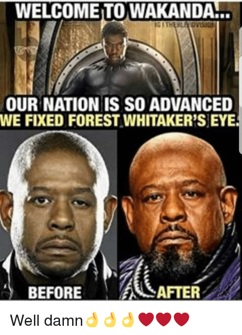 Forest Whitakers Eye: WELCOME TO WAKANDA!..  OUR NATION IS SO ADVANCED  WE FIXED FOREST WHITAKER'S EYE  BEFOREESAFTER Well damn👌👌👌❤❤❤