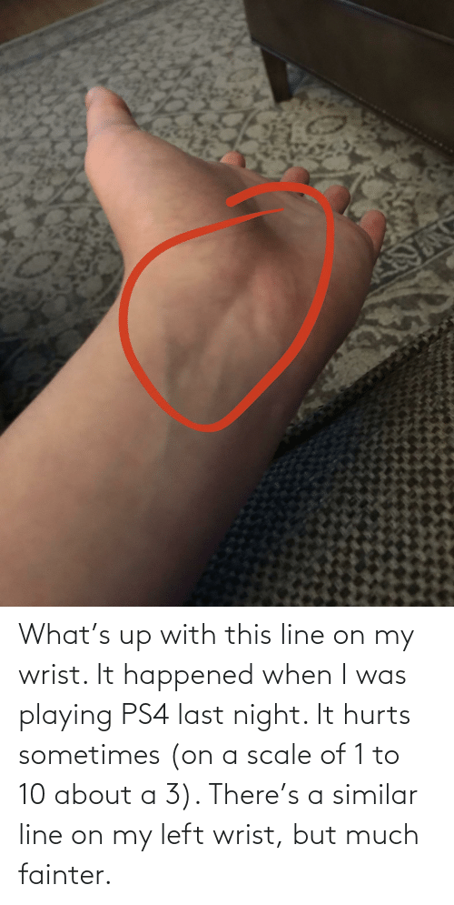 On A Scale Of: What's up with this line on my wrist. It happened when I was playing PS4 last night. It hurts sometimes (on a scale of 1 to 10 about a 3). There's a similar line on my left wrist, but much fainter.