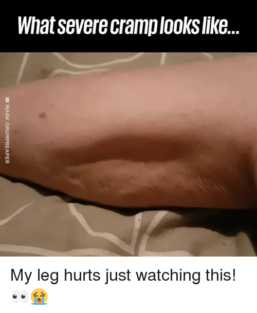 Dank, 🤖, and What: What severe cramplooks like.. My leg hurts just watching this! 👀😭