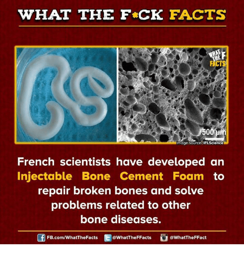 broken bone: WHAT THE FCK FACTS  mage source IFLScience  French scientists have developed an  Injectable Bone Cement Foam to  repair broken bones and solve  problems related to other  bone diseases.  FB.com/WhatThe Facts  @WhatTheFFacts  @WhatTheFFact