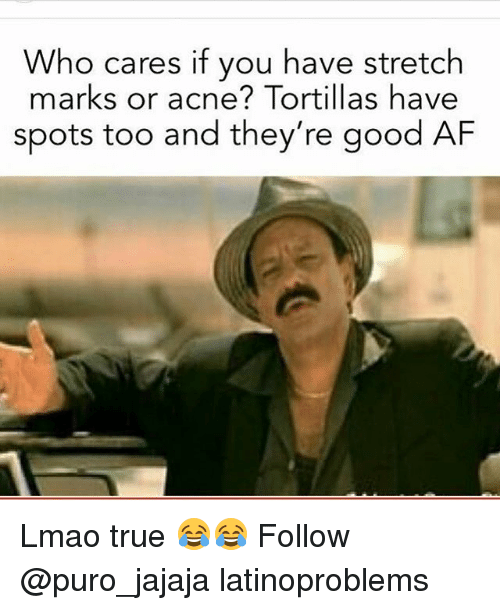 Af, Lmao, and Memes: Who cares if you have stretch  marks or acne? Tortillas have  spots too and they're good AF Lmao true 😂😂 Follow @puro_jajaja latinoproblems