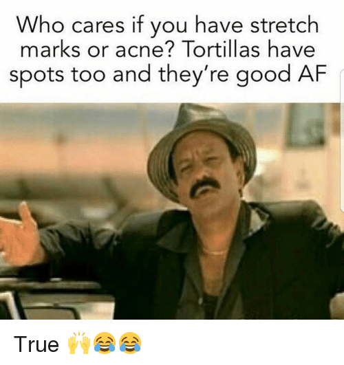 Af, Memes, and True: Who cares if you have stretch  marks or acne? Tortillas have  spots too and they're good AF True 🙌😂😂