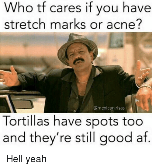 ares: Who tf c  stretch marks or acne?  ares if you have  @mexican.risas  Tortillas have spots too  and they're still good af Hell yeah