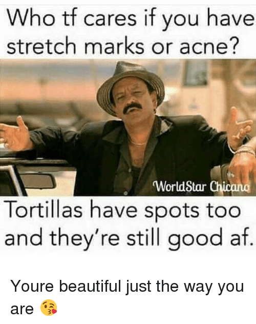 acne: Who tf cares if you have  stretch marks or acne?  WorldStar Chicano  Tortillas have spots too  and they're still good af. Youre beautiful just the way you are 😘