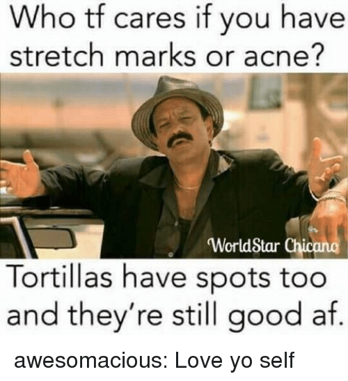 acne: Who tf  stretch marks or acne?  cares if you have  WorldStar Chi  Tortillas have spots too  and they're still good af. awesomacious:  Love yo self