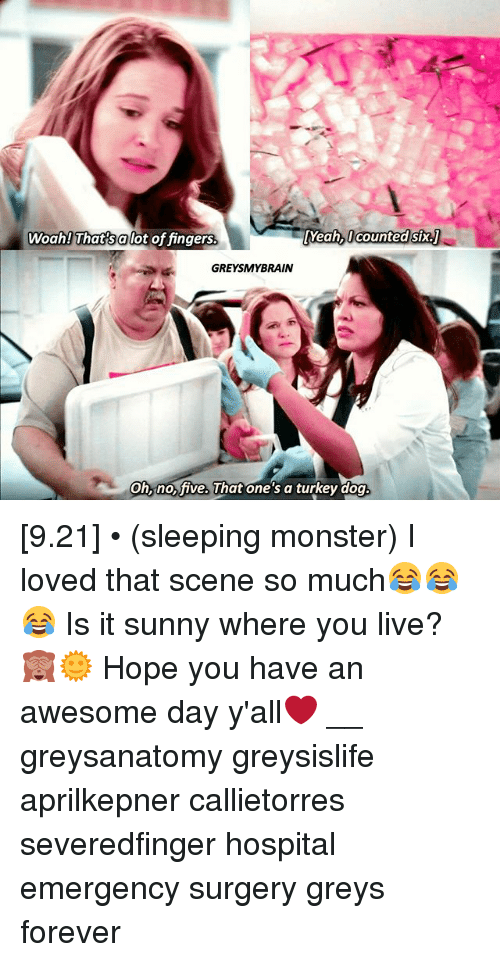 Turkeyism: Woah! That salot of fingers  Yeah, l counted six.  GREYSMYBRAIN  on, ho ive. uhat one s a turkey dog [9.21] • (sleeping monster) I loved that scene so much😂😂😂 Is it sunny where you live?🙈🌞 Hope you have an awesome day y'all❤️ __ greysanatomy greysislife aprilkepner callietorres severedfinger hospital emergency surgery greys forever