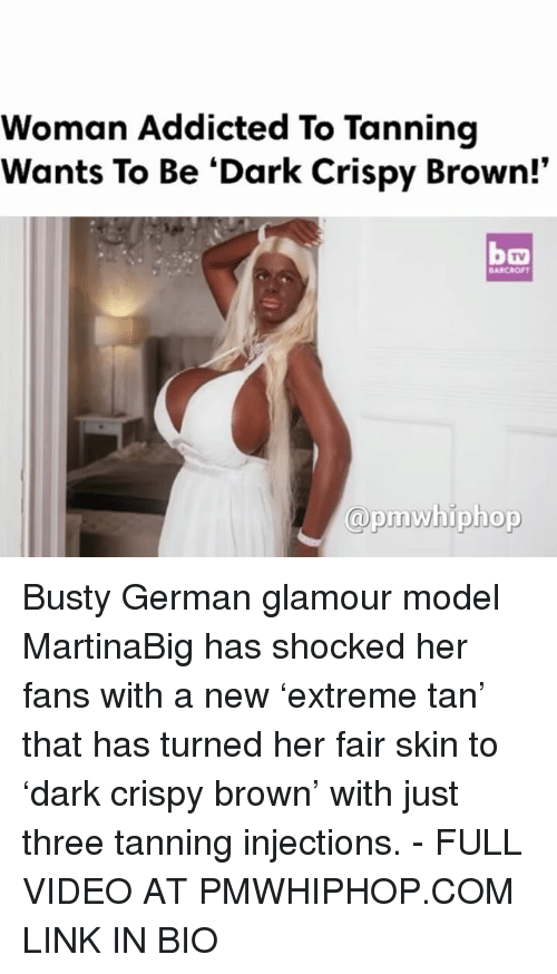Memes, Addicted, and Link: Woman Addicted To Tanning  Wants To Be Dark Crispy Brown!'  @prnw hiphop Busty German glamour model MartinaBig has shocked her fans with a new 'extreme tan' that has turned her fair skin to 'dark crispy brown' with just three tanning injections. - FULL VIDEO AT PMWHIPHOP.COM LINK IN BIO