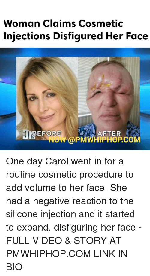 Memes, 🤖, and Silicon: Woman claims Cosmetic  injections Disfigured Her Face  ORE  AFTER  NOW PMWHIPHOPCOM One day Carol went in for a routine cosmetic procedure to add volume to her face. She had a negative reaction to the silicone injection and it started to expand, disfiguring her face - FULL VIDEO & STORY AT PMWHIPHOP.COM LINK IN BIO