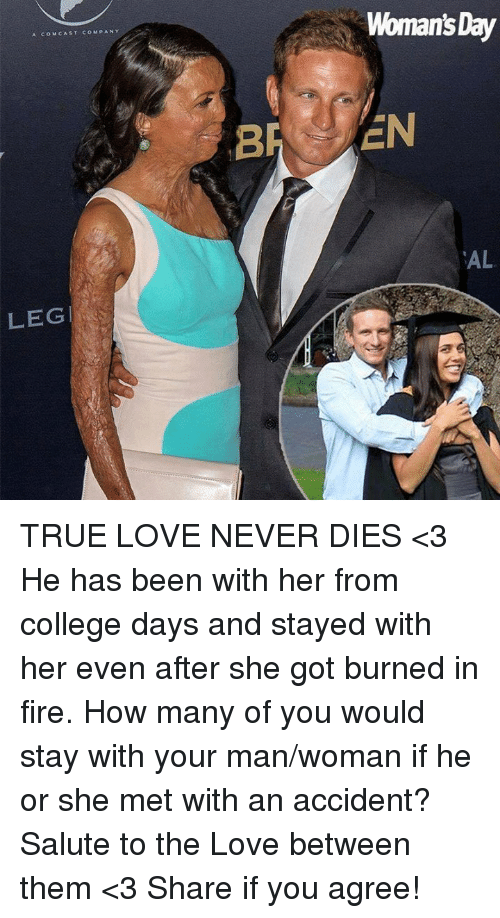 College, Fire, and Love: Woman's Day  A COMCAST COMPANY  AL  LEG TRUE LOVE NEVER DIES <3 He has been with her from college days and stayed with her even after she got burned in fire. How many of you would stay with your man/woman if he or she met with an accident? Salute to the Love between them <3 Share if you agree!