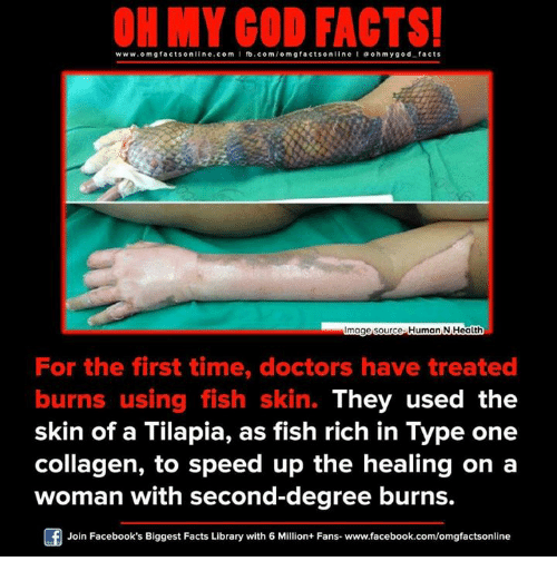 collagen: www.omg facts online.com  I fb.com  m g facts online I a oh y god facts  mage source. Human N Health  For the first time, doctors have treated  burns using fish skin. They used the  skin of a Tilapia, as fish rich in Type one  collagen, to speed up the healing on a  woman with second-degree burns.  Join Facebook's Biggest Facts Library with 6 Million+ Fans- www.facebook.com/omgfactsonline