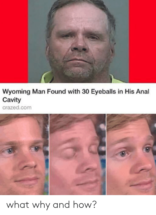 cavity: Wyoming Man Found with 30 Eyeballs in His Anal  Cavity  crazed.com what why and how?