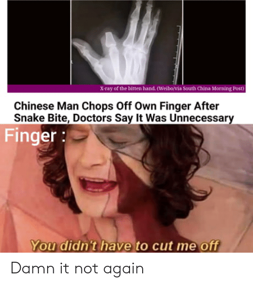 not again: X-ray of the bitten hand. (Weibo/via South China Morning Post)  Chinese Man Chops Off Own Finger After  Snake Bite, Doctors Say It Was Unnecessary  Finger:  You didn't have to cut me off Damn it not again