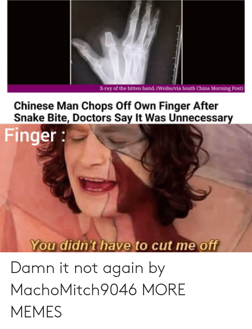 not again: X-ray of the bitten hand. (Weibo/via South China Morning Post)  Chinese Man Chops Off Own Finger After  Snake Bite, Doctors Say It Was Unnecessary  Finger:  You didn't have to cut me off Damn it not again by MachoMitch9046 MORE MEMES