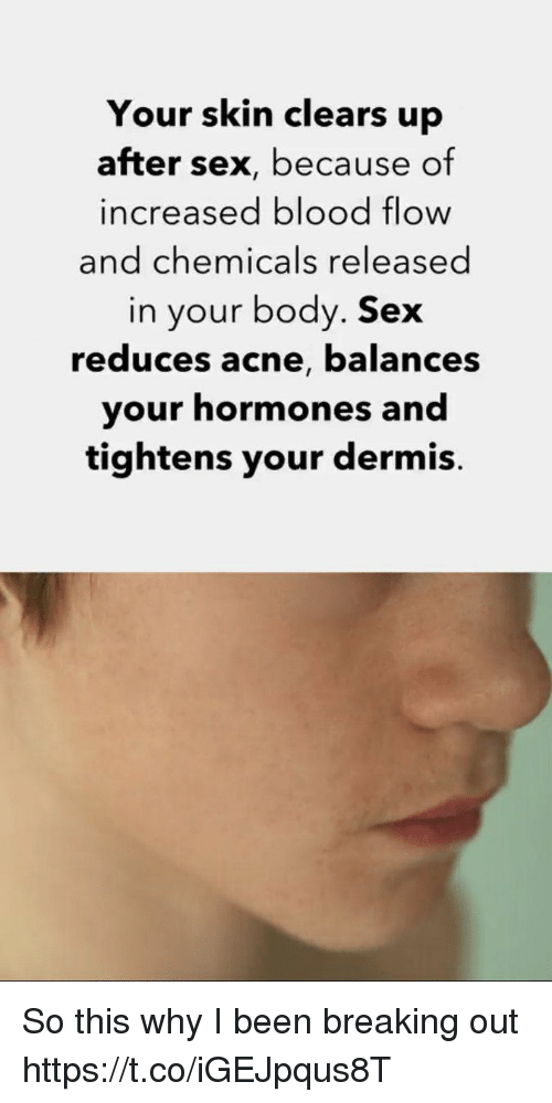 Sex, Been, and Skins: Your skin clears up  after sex, because of  increased blood flow  and chemicals released  in your body. Sex  reduces acne, balances  your hormones and  tightens your dermis So this why I been breaking out https://t.co/iGEJpqus8T